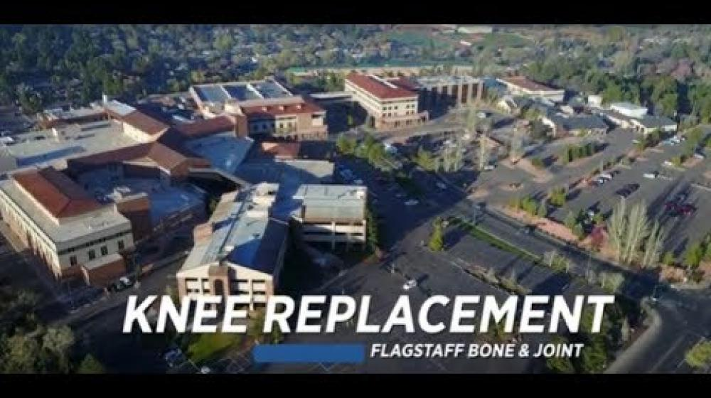 Flagstaff Bone & Joint – Knee Replacement Patient Testimonial