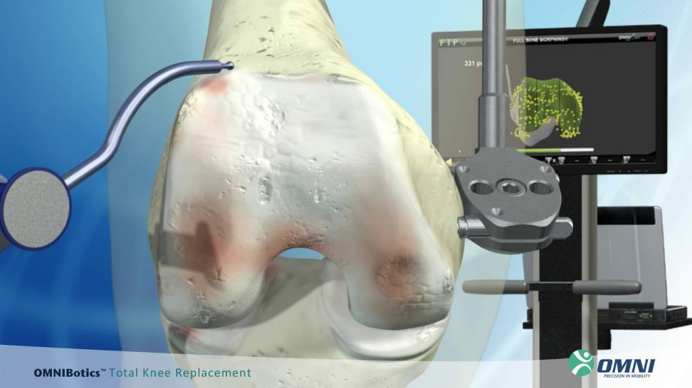 OMNIBotics Robotic-Assisted Total Knee Replacement